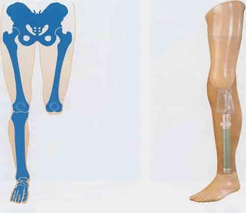 Протезирование при вычленении коленного сустава ограничитель на суставы нижних конечностей